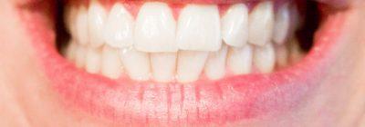 rechte tanden zonder beugel